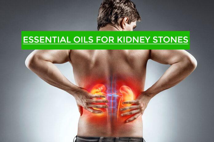 Essential Oils for Kidney Stones