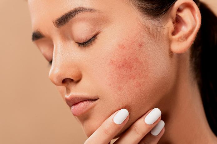 Dermatology Conferences